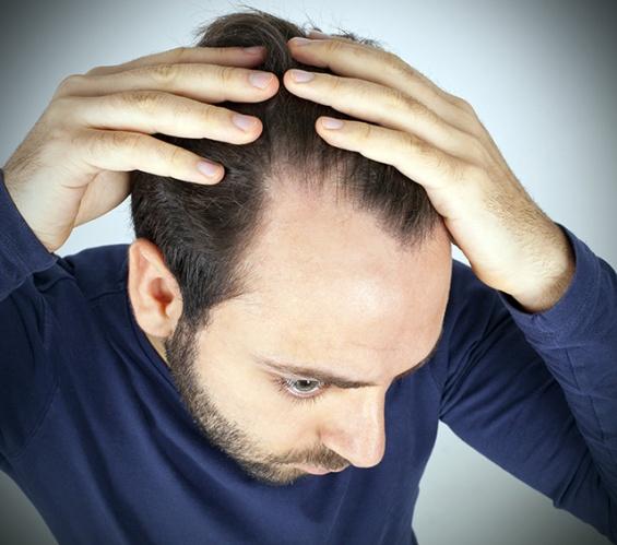 Saç dökülmesine karşı etkili 10 besin