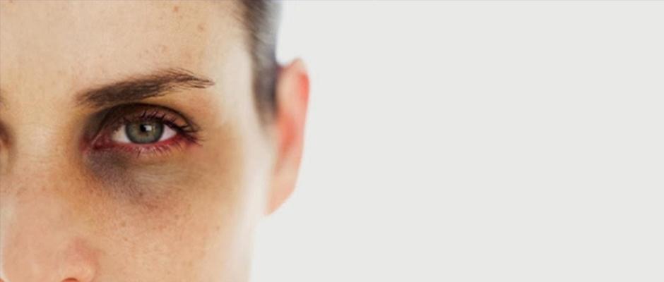 Göz altındaki morlukların çeşitli sebepleri var ama tedavisi de
