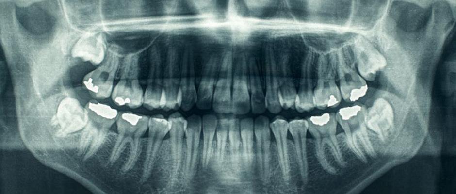 Kök hücre dolguları ile diş çürükleri tarih olabilir mi?