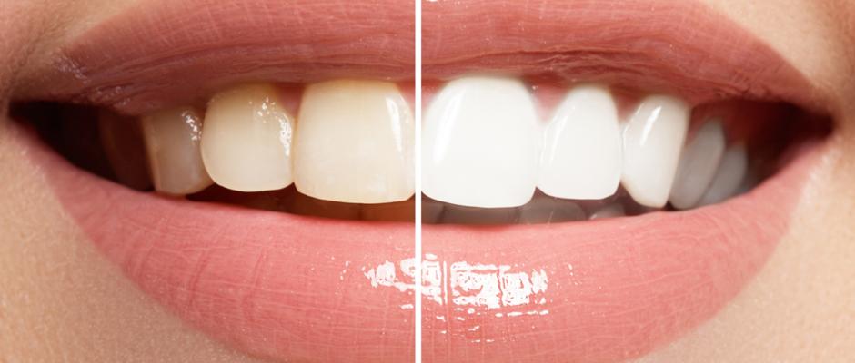 Kömürle diş beyazlatma uygulamalarının tehlikeleri