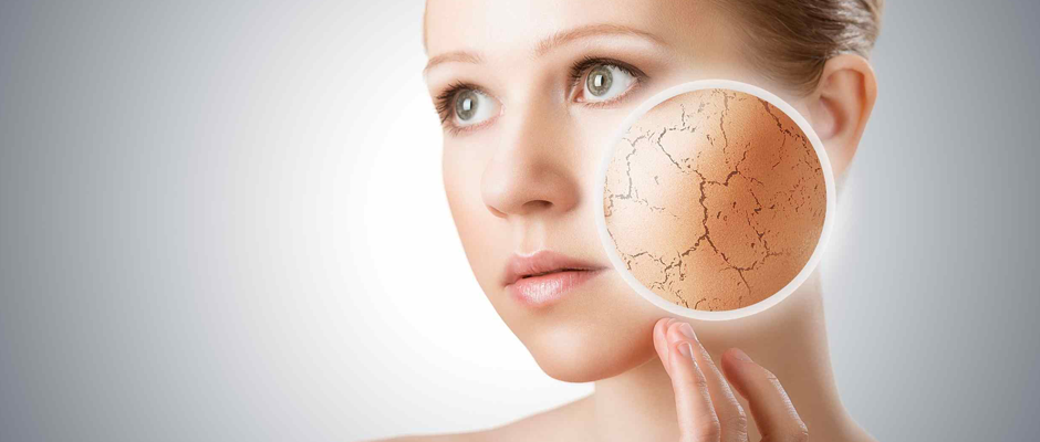 Kış aylarında cildiniz kuruyorsa doğru beslenme bu sorunu çözebilir