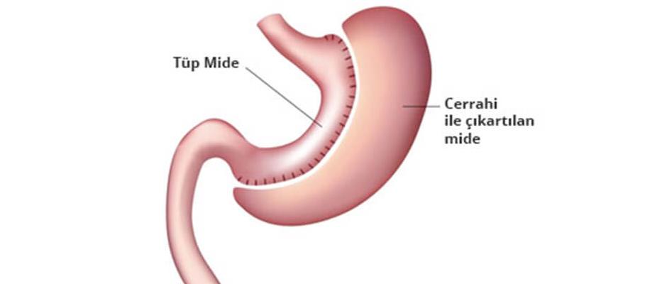 Tüp mide ameliyatlarında şikayetler, skandallar