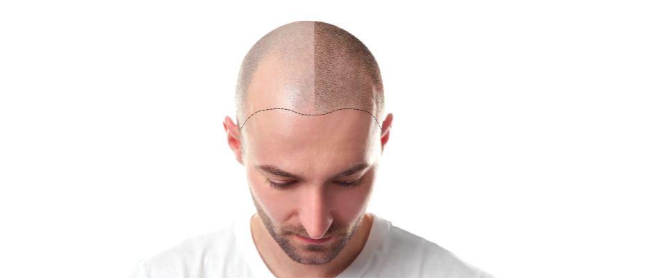 Adım adım saç ekimi süreci