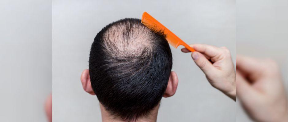 Saç ekiminde risk: Tehlike saçan saç ekim merkezleri