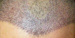 Doktor İsmail Küçüker: Yurt dışından ciddi sayıda insan saç ekimi için Türkiye'yi tercih etmekte