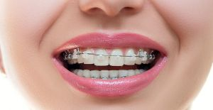 Ortodonti tedavisi estetiğe rakip