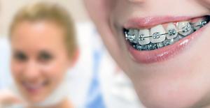 Teknoloji ile ortodontik tedavilere ilgi arttı
