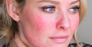 'Yüz kızartıcı' bir hastalık: Rozasea