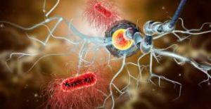 Kök hücre nakli, MS hastalığının kaderini değiştirebilir