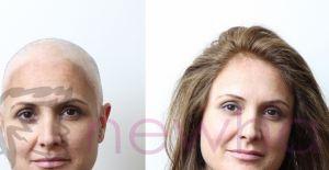 Protez Saç Nedir? Bilmeniz Gereken 5 Öneri