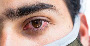 Kara mantar hastalığı tedavi edilmezse ölüme yol açabiliyor